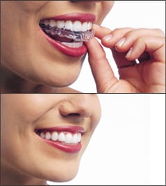 A woman placing her Invisalign aligners