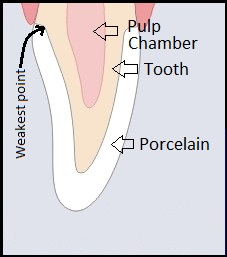 illustration of a a front tooth