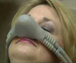 woman wearing nitrous oxide nose piece