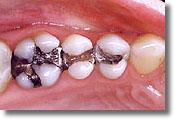 Gilbert mercury-free dentist