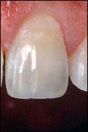 Gilbert dental bonding