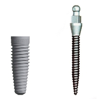 Gilbert affordable dental implants