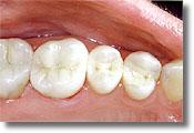 Gilbert mercury-free filling or white composite